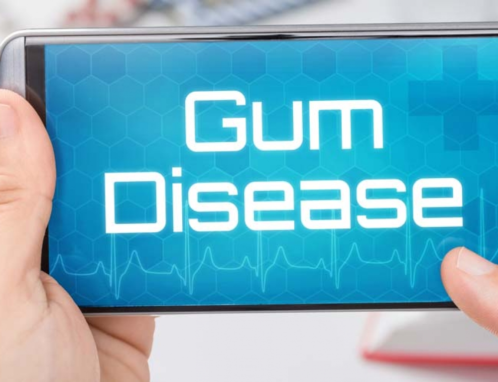 A Healing Oil That Can Help Reduce Gum Disease!
